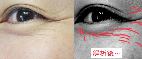 【シワの改善】日本で初めて認可された有効成分が凄い!ボトックス注射いらず、2週間で驚きの結果が…!